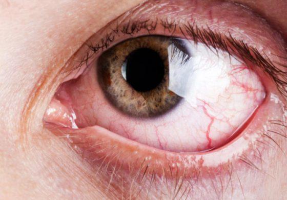 Алохолот може да го оштети видот