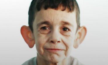 Седумгодишно момче заробено во тело на старец (видео)