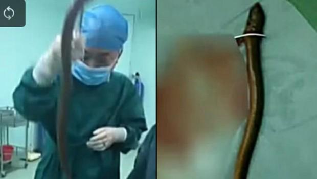 Лекарите од задникот му извадиле јагула долга поливина метар, причината како завршила таму е бизарна (видео)