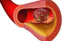 Шест знаци кои укажуваат дека имате згрутчување на крвта