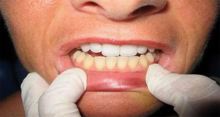 Секое утро ја правите оваа грешка додека ги миете забите и затоа стануваат жолти