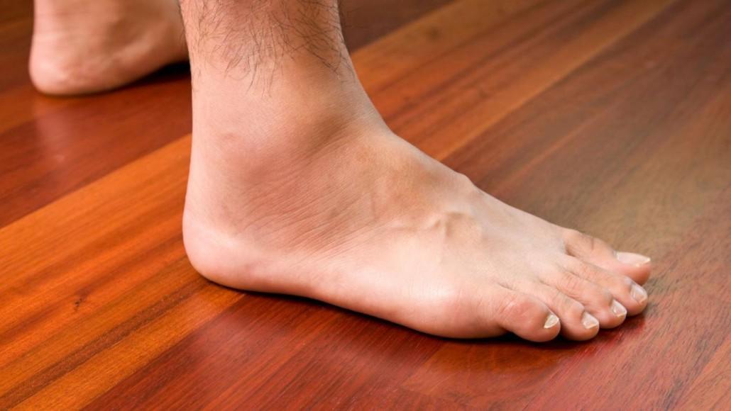 Со вежбање спречете го отекувањето на нозете