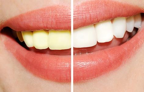 Избелување на забите во домашни услови со хидроген