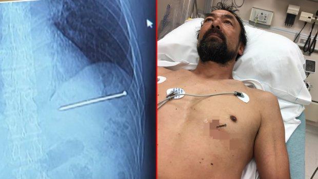 Со ексер во срцето примен на Ургентен центар: Лекарите во шок, не им е јасно како е жив (фото+видео)