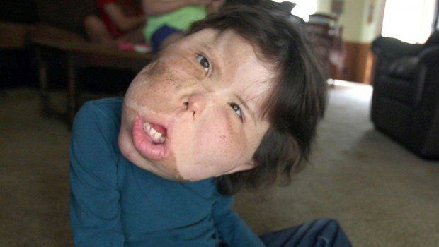 Ова девојче има болест која е толку ретка што се уште нема име (фото)