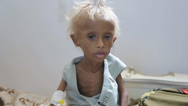 Снимка од момче кое умира од глад го потресе светот: Борба за живот и по година дена гладување (видео)