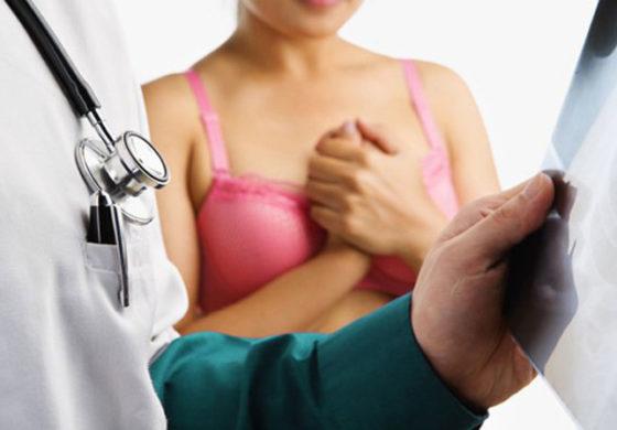 4 симптоми на рак на дојка, различни од грутката