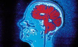Со помош на чипови во мозокот ќе се подобрува памтењето на луѓето