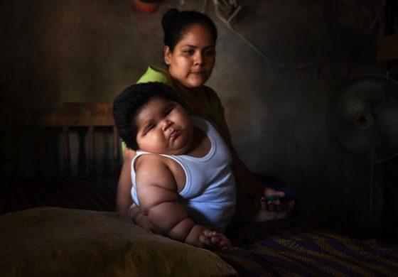 Бебе од 10 месеци тешко 28 килограми: Не може да лази и чекори, а мајката направила една голема грешка (фото)