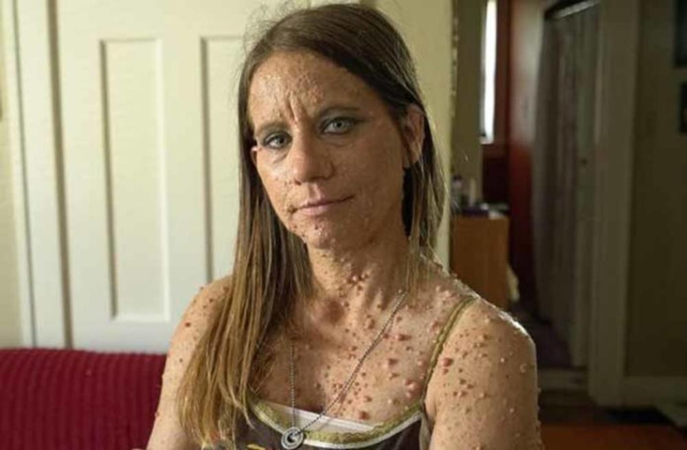 Имала 6.000 израстоци по телото: По 10 операции денес изгледа вака (видео)