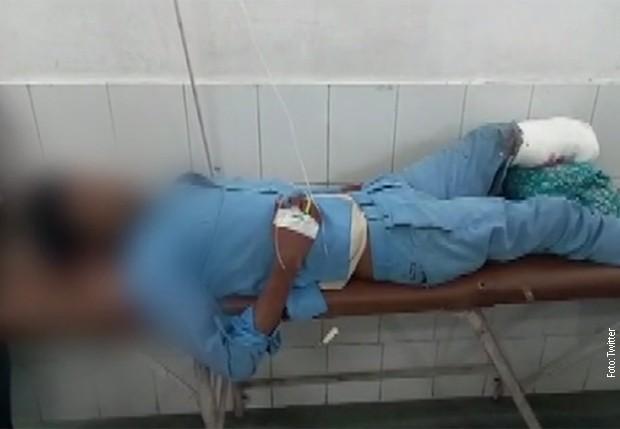 Наместо перница во болницата под глава му ја ставиле отсечената нога (ВИДЕО)