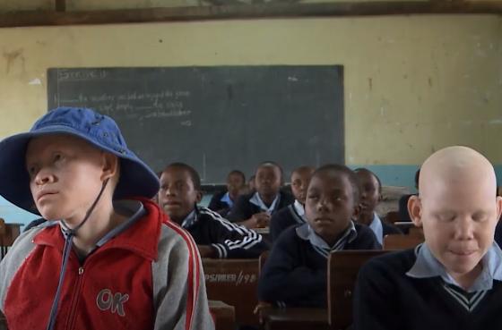 Ги сечат на парчиња, па делови од телата ги продаваат: Лов на албино луѓе во Танзанија (ВИДЕО)