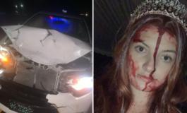 Го удрила автомобилот, а нејзината маска за Ноќта на вештерките била толку добра што лекарите мислеле дека е мртва (ФОТО)